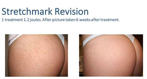 Stretch mark Revision